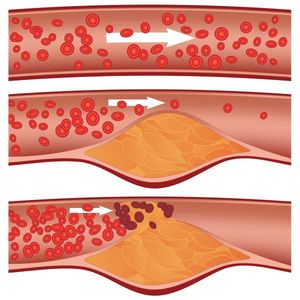 Атеросклероз сосудов - причины, симптомы, лечение болезни